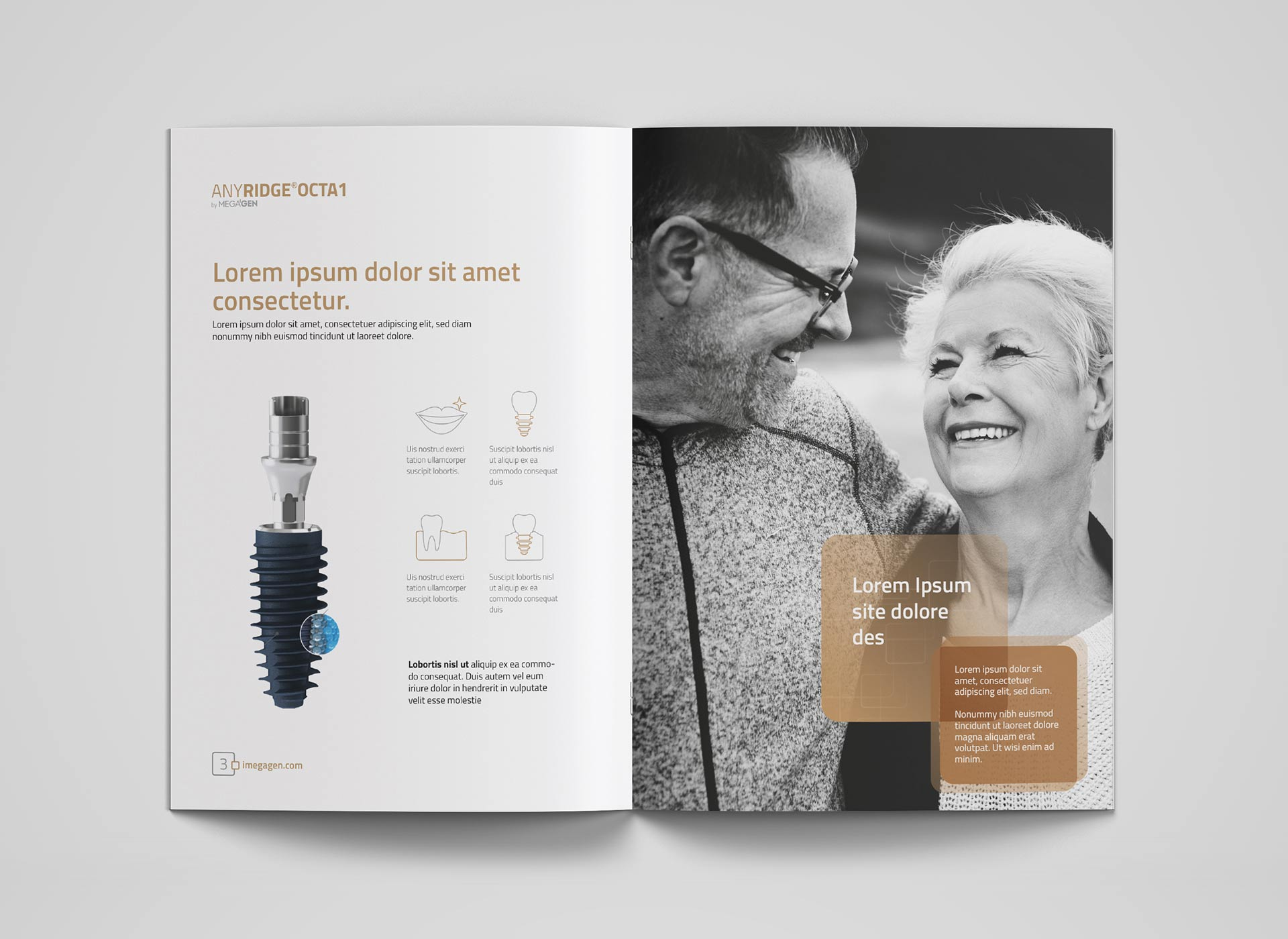Megagen Koreea anyridge octa1 brochure portfolio inoveo